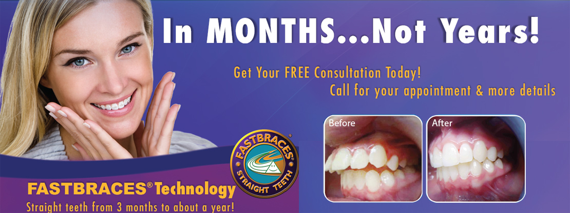 FASTBRACES STRAIGHT TEETH! GET YOUR FREE CONSULTION TODAY!!! At Boss & Rorvik Family Dental in Midland Michigan